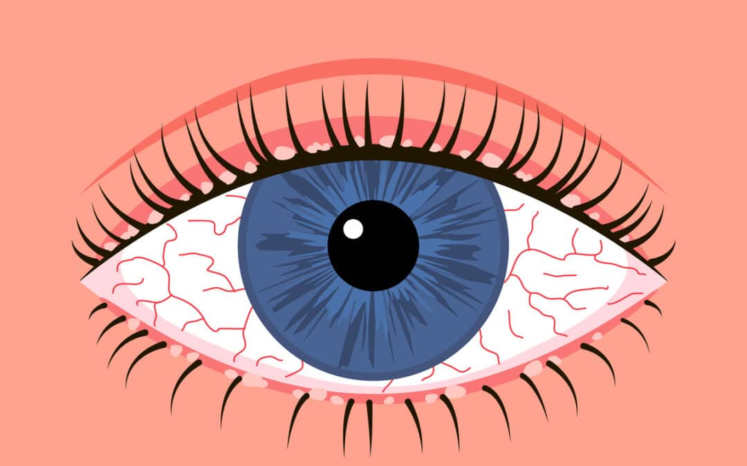 Eye Injury Lawyer: Making a Claim for Compensation